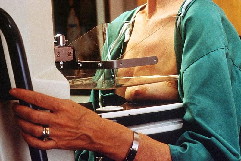 Mamografia: um raio x doloroso
