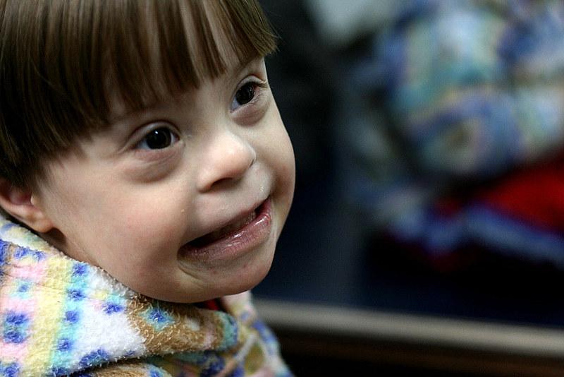 Texto visagarantir que os pais estejam mais preparados para receber filhos com a síndrome
