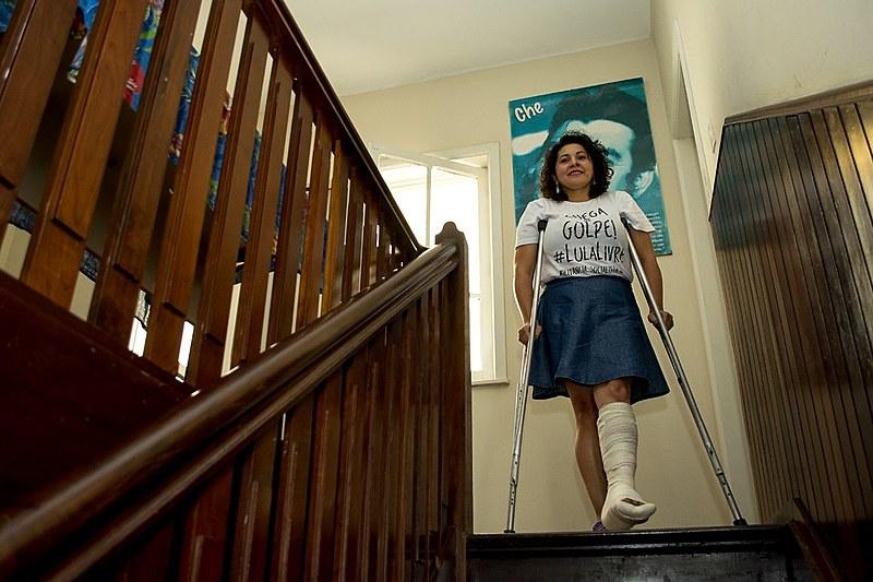 Há um mês, a assistente social Vanda de Assis trata da recuperação de parte do nariz e ainda depende das pessoas e muletas para andar