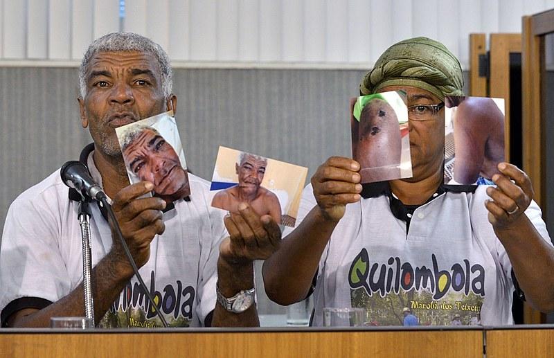 Quilombola Jurandir expõe as fotos tiradas após a tentativa de homicídio
